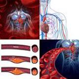 7 Buchstaben Lösung Arterie